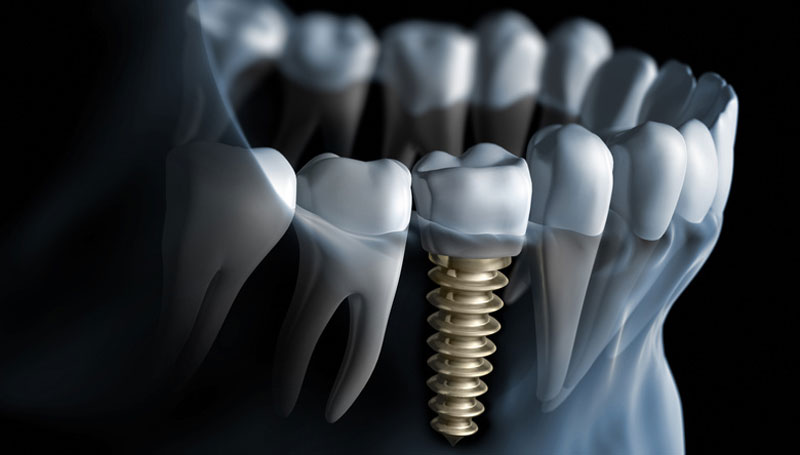 Advanced Implant Dentistry