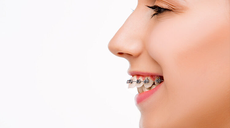 Need for Braces-What is the correct age?